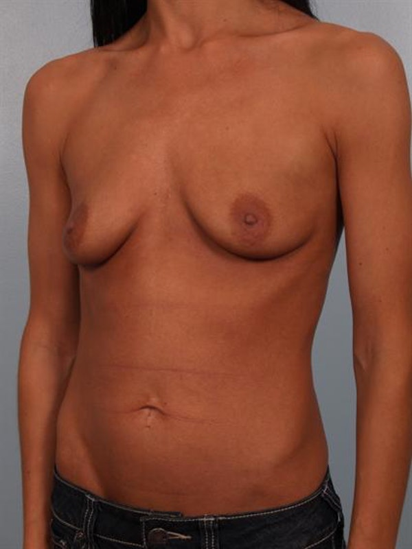 Breast Augmentation Gallery - Patient 1310293 - Image 5
