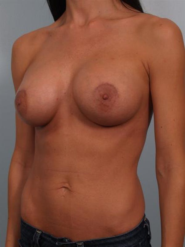 Breast Augmentation Gallery - Patient 1310293 - Image 6