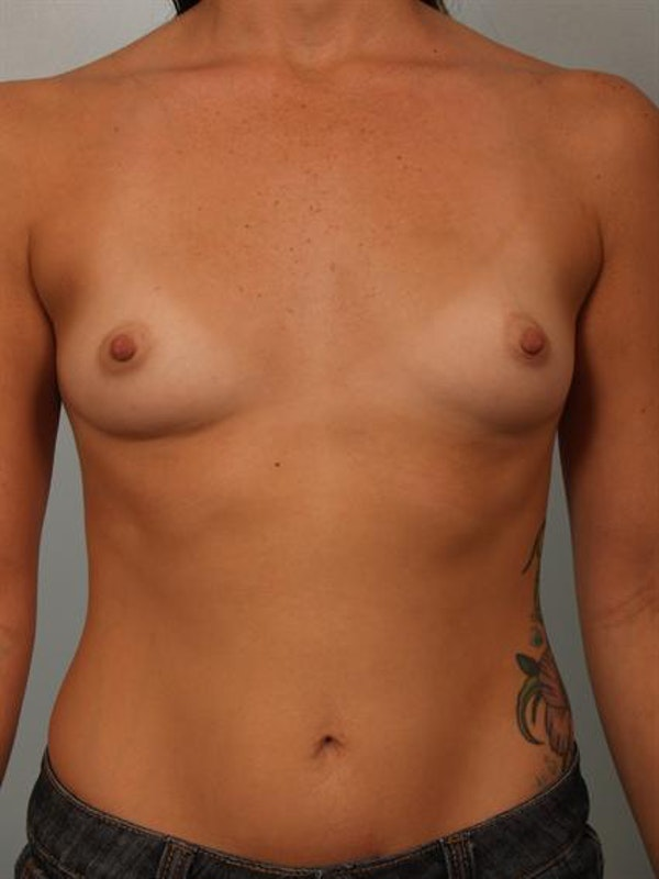 Breast Augmentation Gallery - Patient 1310294 - Image 1