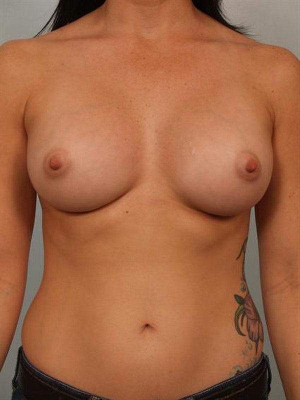 Breast Augmentation Gallery - Patient 1310294 - Image 2