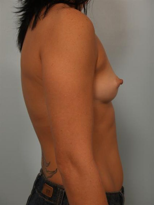 Breast Augmentation Gallery - Patient 1310294 - Image 3