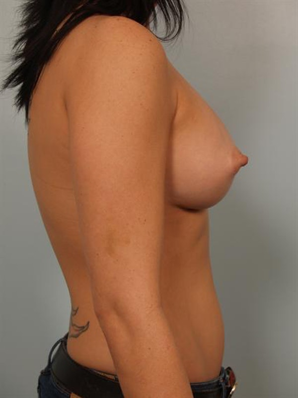 Breast Augmentation Gallery - Patient 1310294 - Image 4