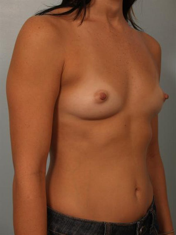 Breast Augmentation Gallery - Patient 1310294 - Image 5