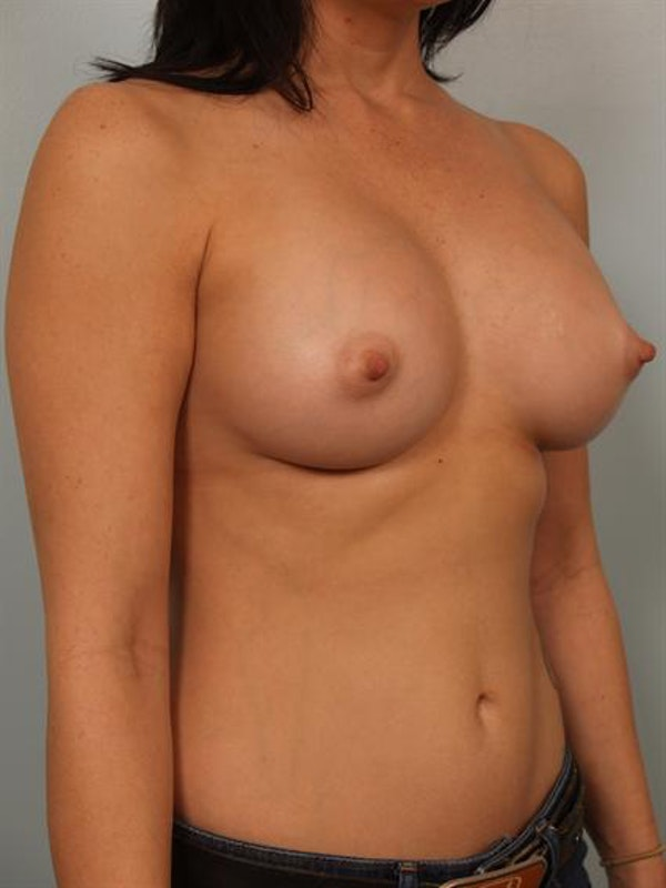 Breast Augmentation Gallery - Patient 1310294 - Image 6
