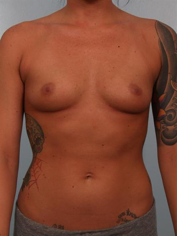 Breast Augmentation Gallery - Patient 1310295 - Image 1