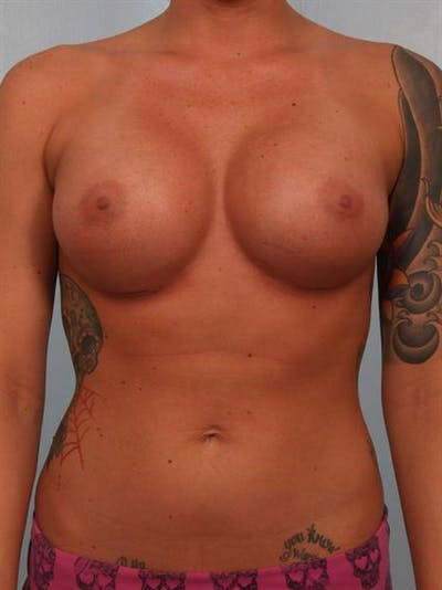 Breast Augmentation Gallery - Patient 1310295 - Image 2