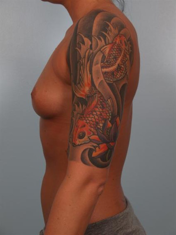 Breast Augmentation Gallery - Patient 1310295 - Image 3