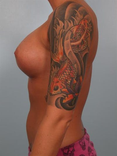 Breast Augmentation Gallery - Patient 1310295 - Image 4