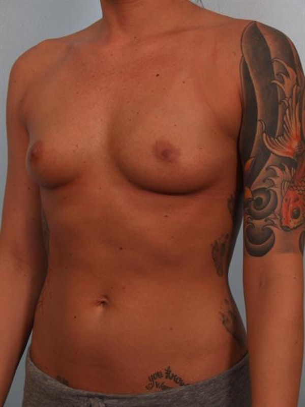 Breast Augmentation Gallery - Patient 1310295 - Image 5