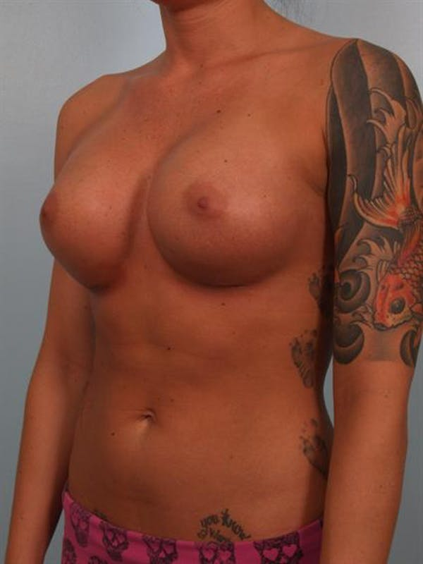 Breast Augmentation Gallery - Patient 1310295 - Image 6