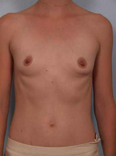 Breast Augmentation Gallery - Patient 1310296 - Image 1