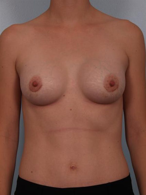 Breast Augmentation Gallery - Patient 1310296 - Image 2