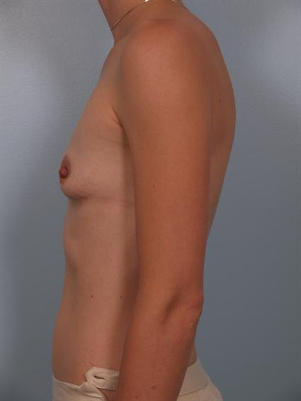 Breast Augmentation Gallery - Patient 1310296 - Image 3