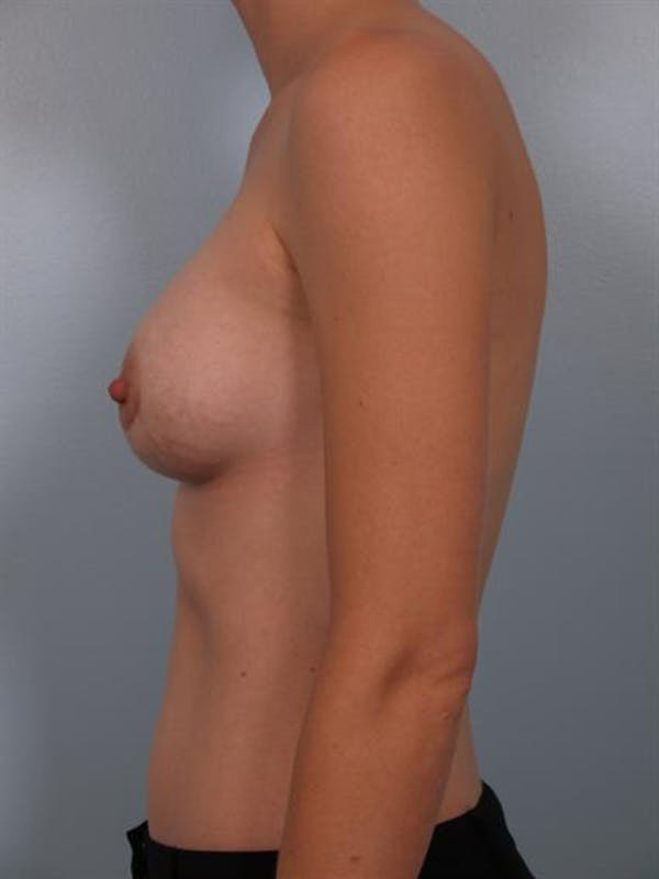 Breast Augmentation Gallery - Patient 1310296 - Image 4