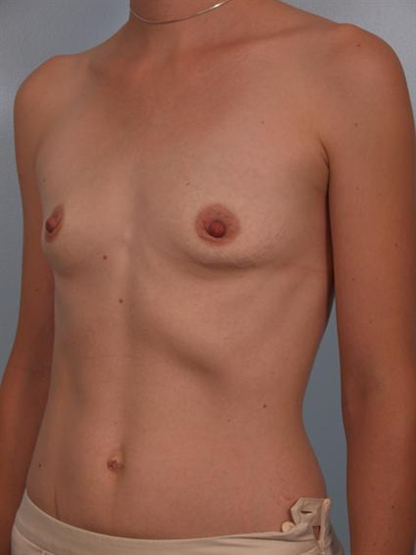 Breast Augmentation Gallery - Patient 1310296 - Image 5