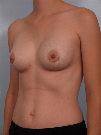 Breast Augmentation Gallery - Patient 1310296 - Image 6