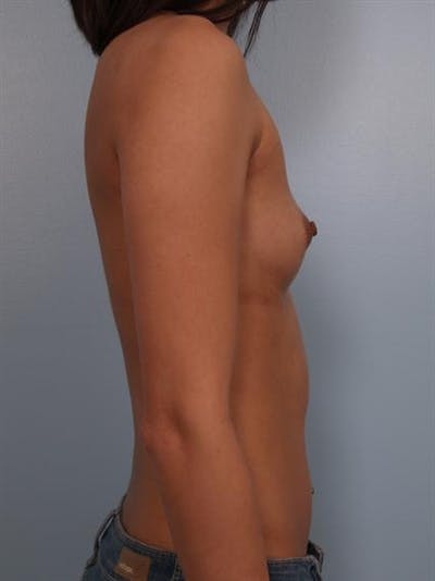 Breast Augmentation Gallery - Patient 1310298 - Image 1