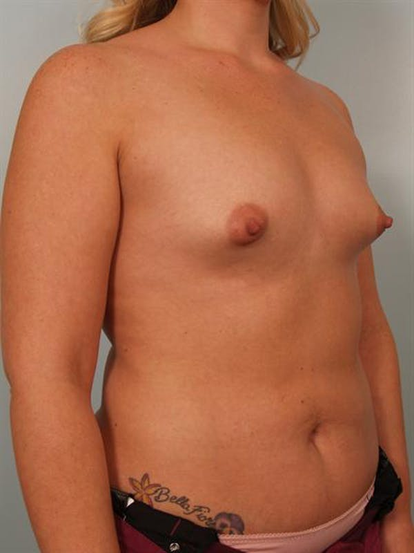 Breast Augmentation Gallery - Patient 1310300 - Image 3