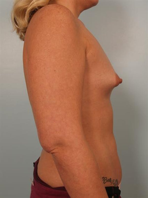 Breast Augmentation Gallery - Patient 1310300 - Image 5