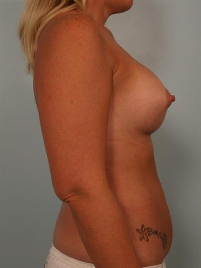 Breast Augmentation Gallery - Patient 1310300 - Image 6