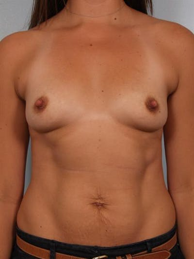 Breast Augmentation Gallery - Patient 1310301 - Image 1