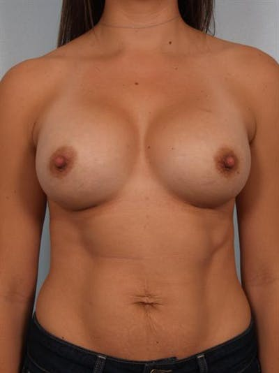 Breast Augmentation Gallery - Patient 1310301 - Image 2