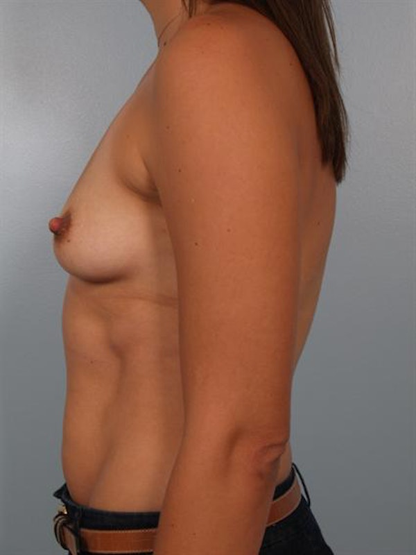 Breast Augmentation Gallery - Patient 1310301 - Image 3