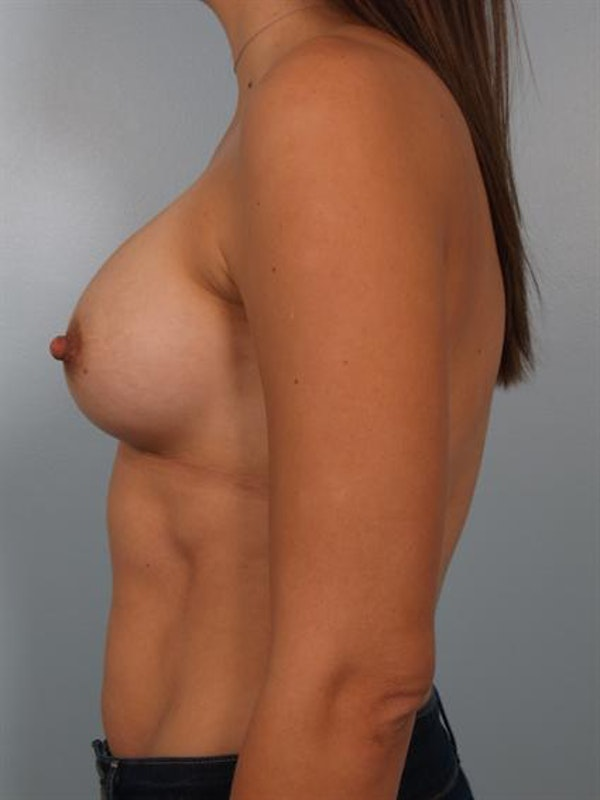 Breast Augmentation Gallery - Patient 1310301 - Image 4
