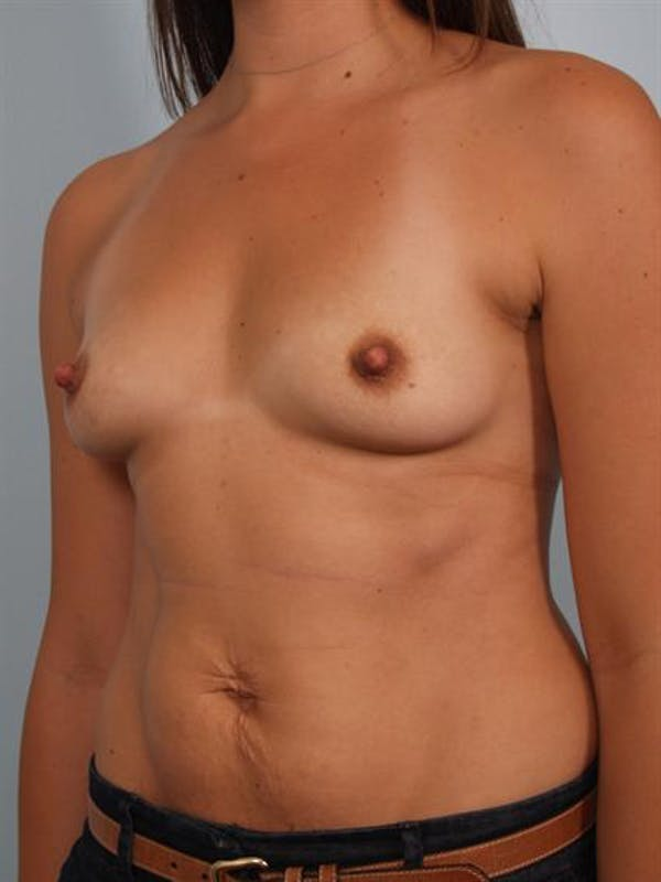 Breast Augmentation Gallery - Patient 1310301 - Image 5