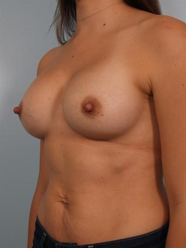 Breast Augmentation Gallery - Patient 1310301 - Image 6