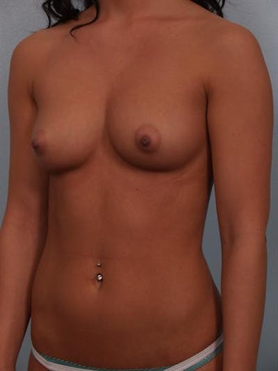 Breast Augmentation Gallery - Patient 1310305 - Image 1