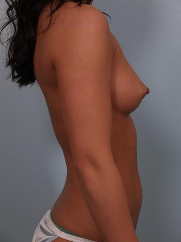 Breast Augmentation Gallery - Patient 1310305 - Image 5