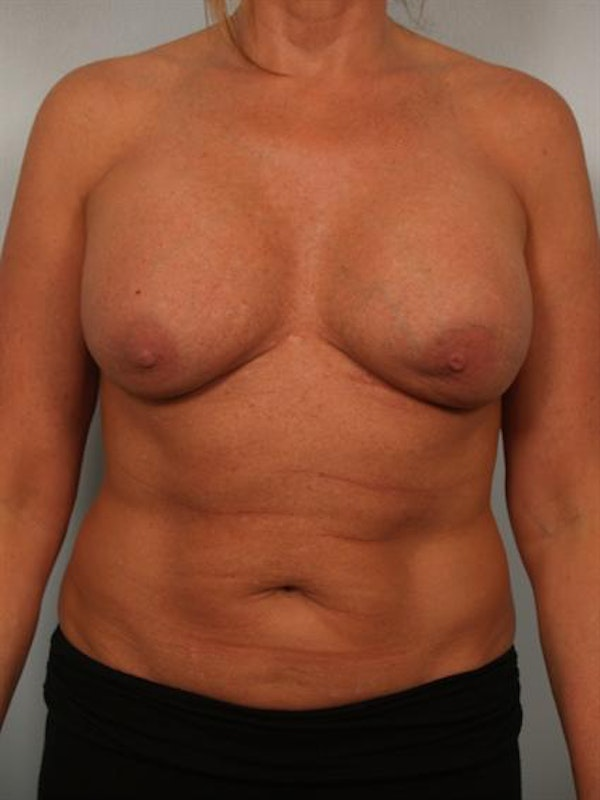 Breast Augmentation Gallery - Patient 1310307 - Image 1