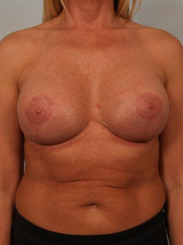 Breast Augmentation Gallery - Patient 1310307 - Image 2
