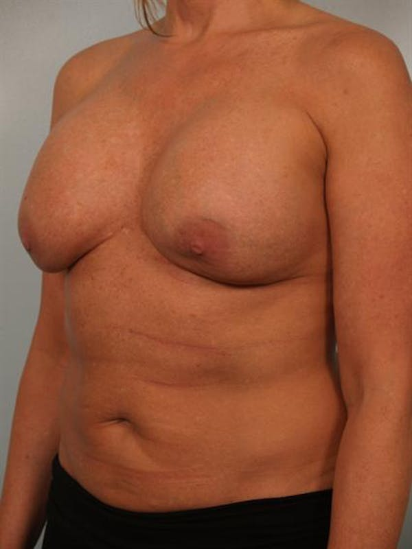 Breast Augmentation Gallery - Patient 1310307 - Image 3