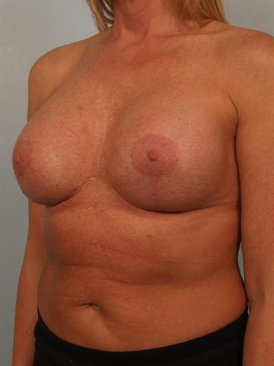 Breast Augmentation Gallery - Patient 1310307 - Image 4