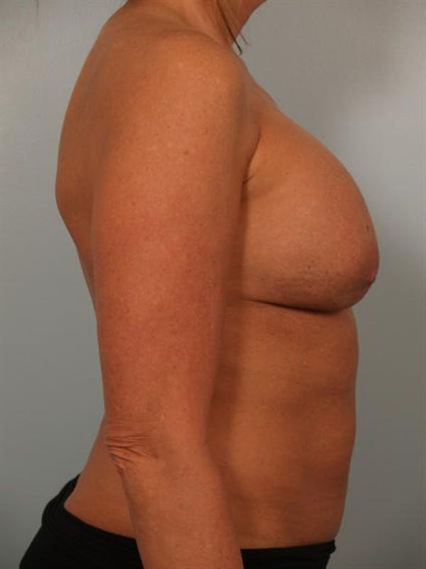 Breast Augmentation Gallery - Patient 1310307 - Image 5