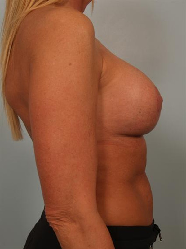Breast Augmentation Gallery - Patient 1310307 - Image 6
