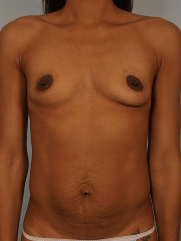 Breast Augmentation Gallery - Patient 1310308 - Image 1