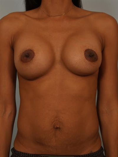 Breast Augmentation Gallery - Patient 1310308 - Image 2