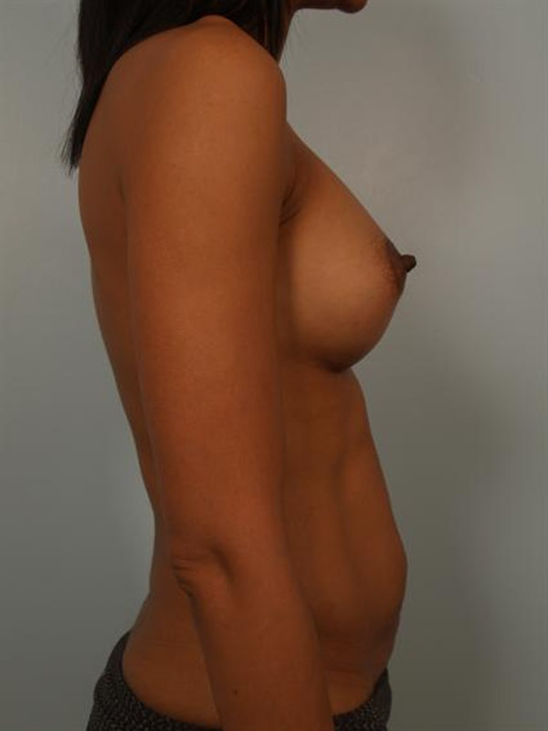 Breast Augmentation Gallery - Patient 1310308 - Image 4