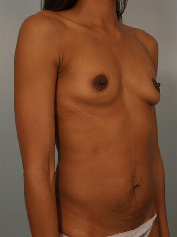 Breast Augmentation Gallery - Patient 1310308 - Image 5