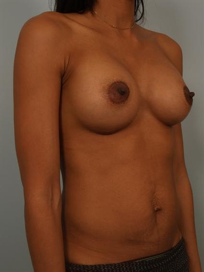 Breast Augmentation Gallery - Patient 1310308 - Image 6