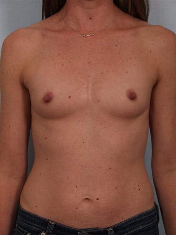 Breast Augmentation Gallery - Patient 1310310 - Image 1