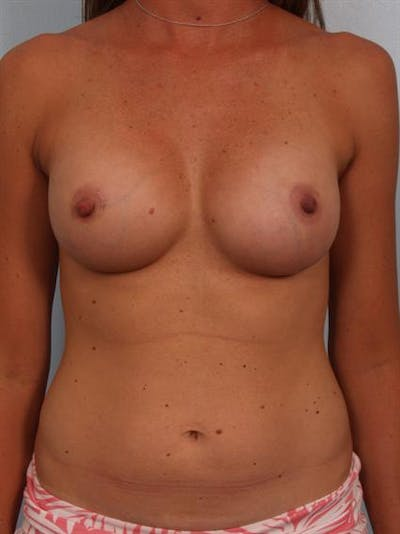 Breast Augmentation Gallery - Patient 1310310 - Image 2