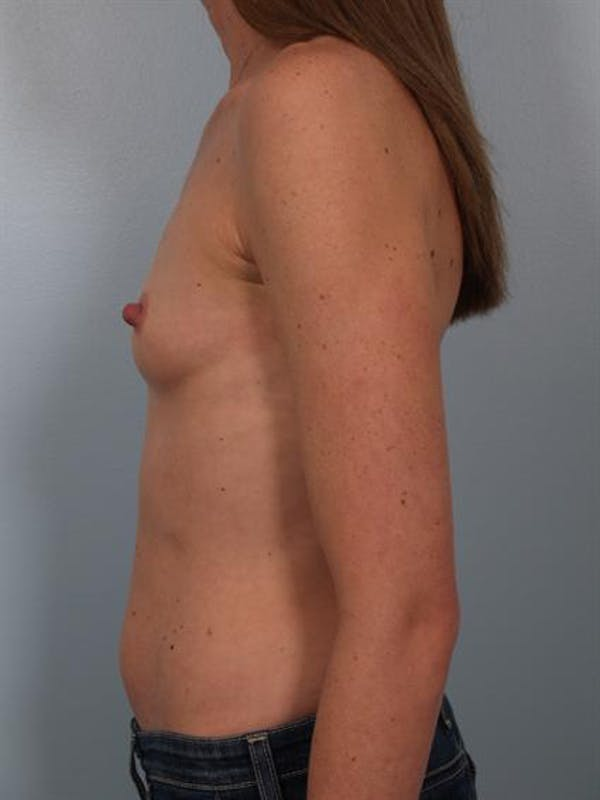 Breast Augmentation Gallery - Patient 1310310 - Image 3