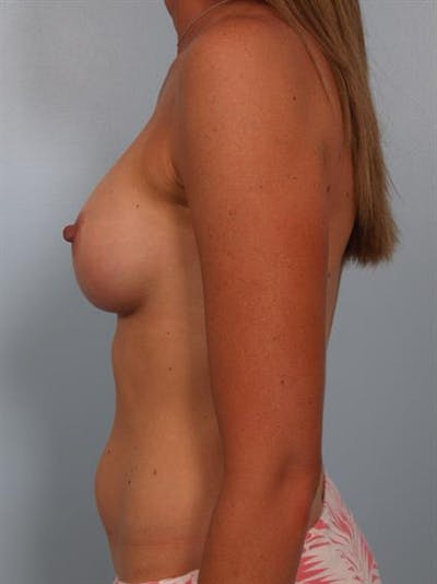 Breast Augmentation Gallery - Patient 1310310 - Image 4