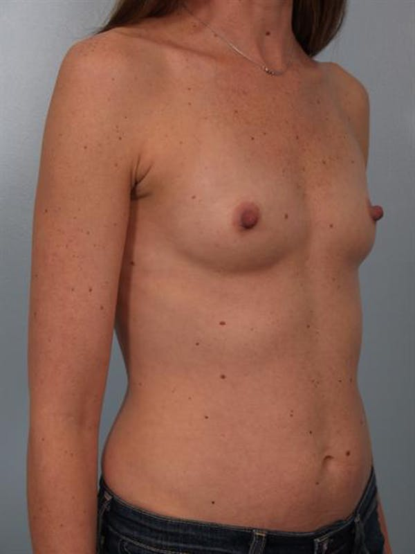 Breast Augmentation Gallery - Patient 1310310 - Image 5
