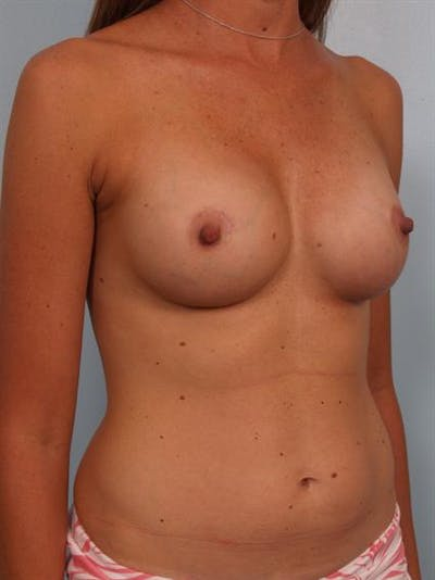 Breast Augmentation Gallery - Patient 1310310 - Image 6