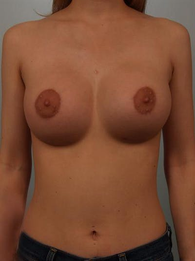 Breast Augmentation Gallery - Patient 1310311 - Image 2